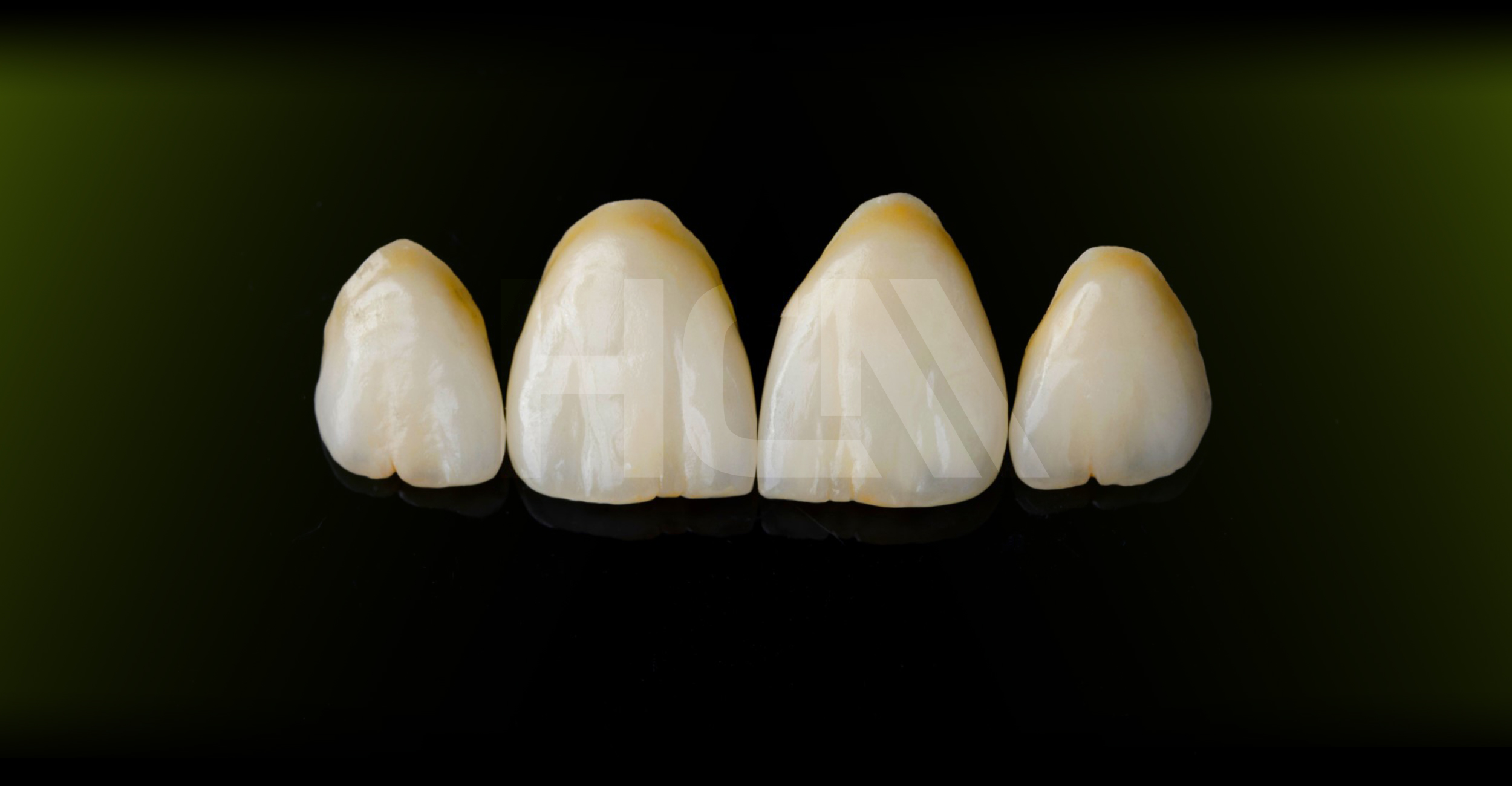 EMAX veneers, crowns, inlay / onlay