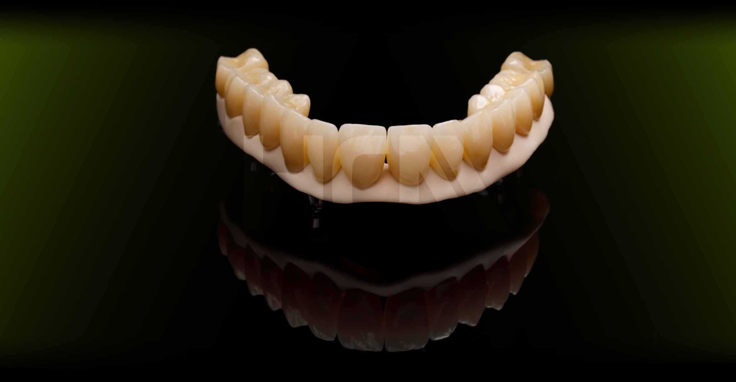 PEEK / Grapheno structure with zirconia crowns